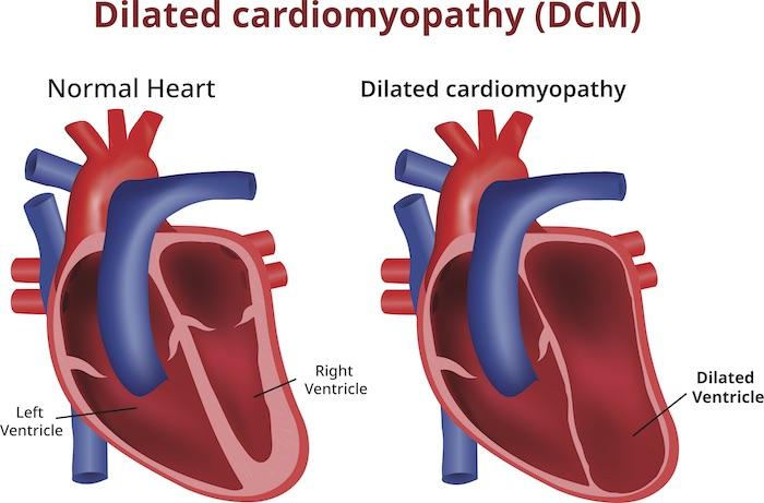 Q10 heart disease children